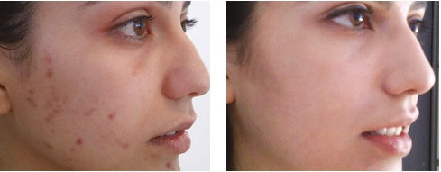 peeling quimico antes depois