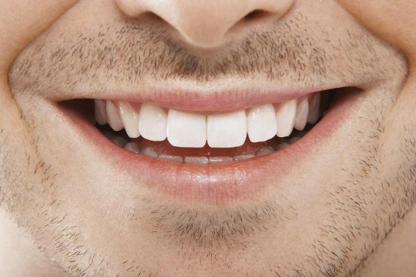Como Clarear Os Dentes Dicas Super Eficazes