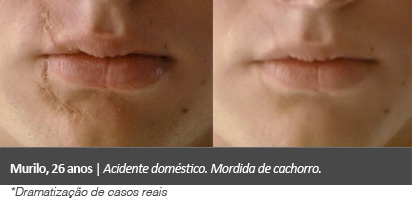 cicatricure gel antes depois
