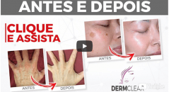 dermclear antes depois