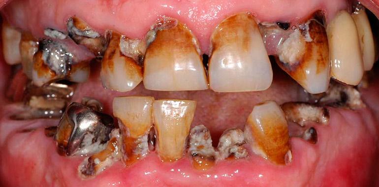 A lyukas fog veszélyei és tünetei: a fogorvos válaszol | Karmadent