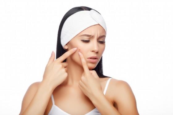 acne-cura
