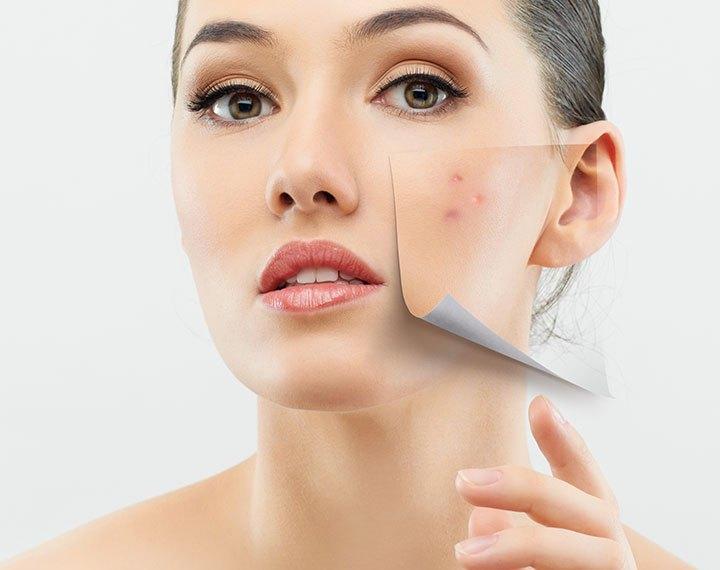 acne-rimedi