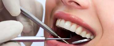 Cosmetic Dentistry Bonding