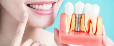 Guided Dental Implant Surgery