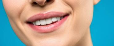 Teeth Whitening Options Explained