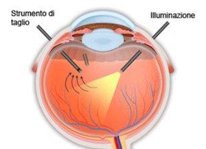 Distacco di retina 2