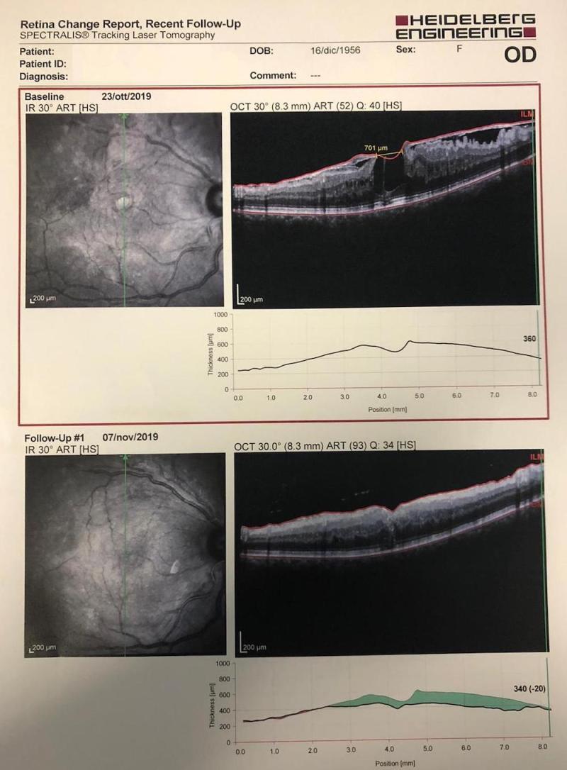 floretina live surgery