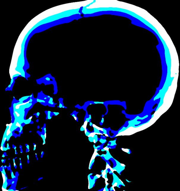blu1-skull-x-ray