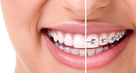 ortodontik