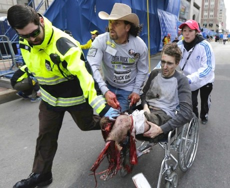 boston-marathon-lost-leg
