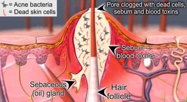 Acne-Cross-Section.jpg
