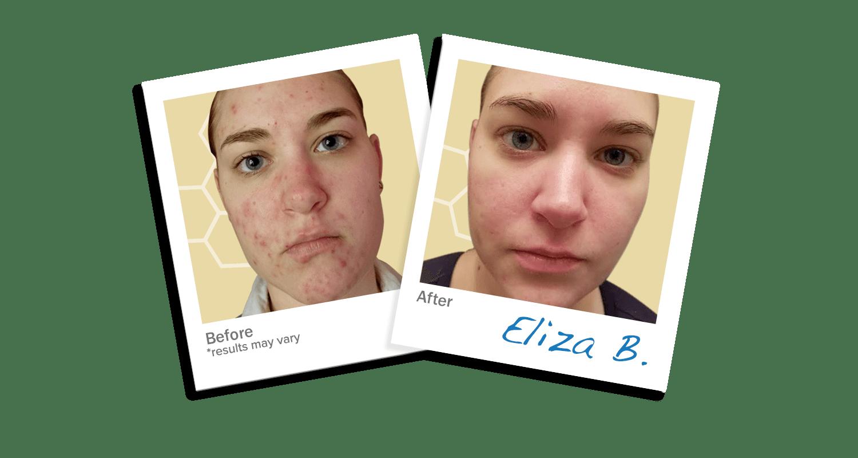 LEROSETT® Spot Treatment Clearing Mask