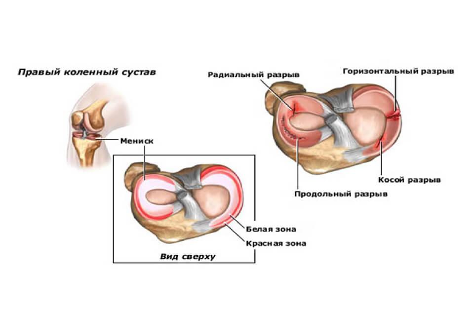 hogyan kezeljük a térdízületet artrózissal