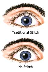 no stitch cataract surgery example