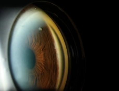 eyeStent