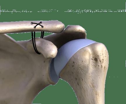 amarrilho do coracóide na clavícula