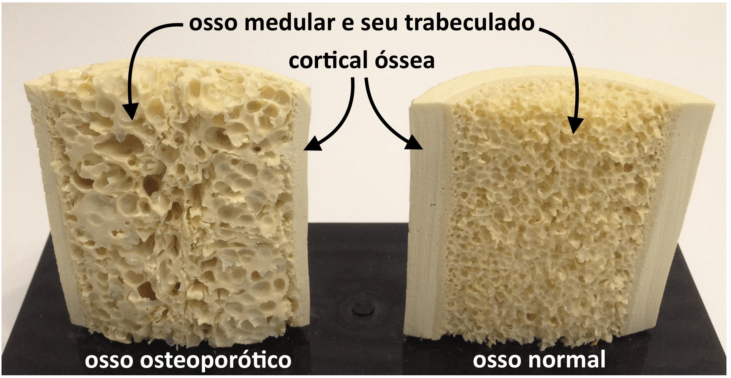 osteoporose o que é