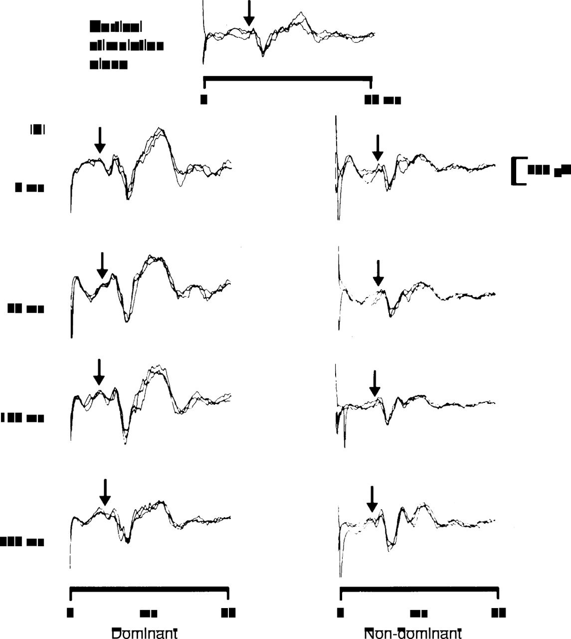Laterality effects of human pudendal nerve stimulation on