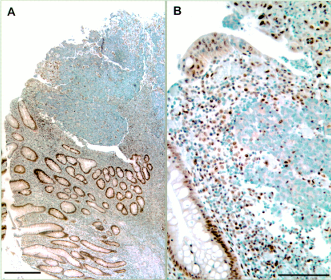 Microsatellite instability and the clinicopathological features of sporadic colorectal cancer   Gut