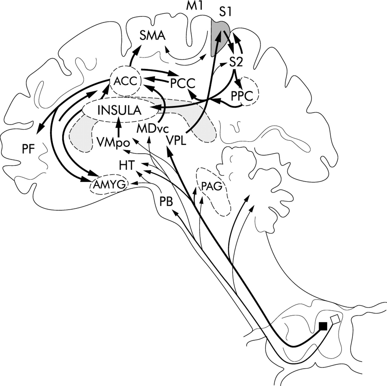 Brain Imaging And Functional Gastrointestinal Disorders