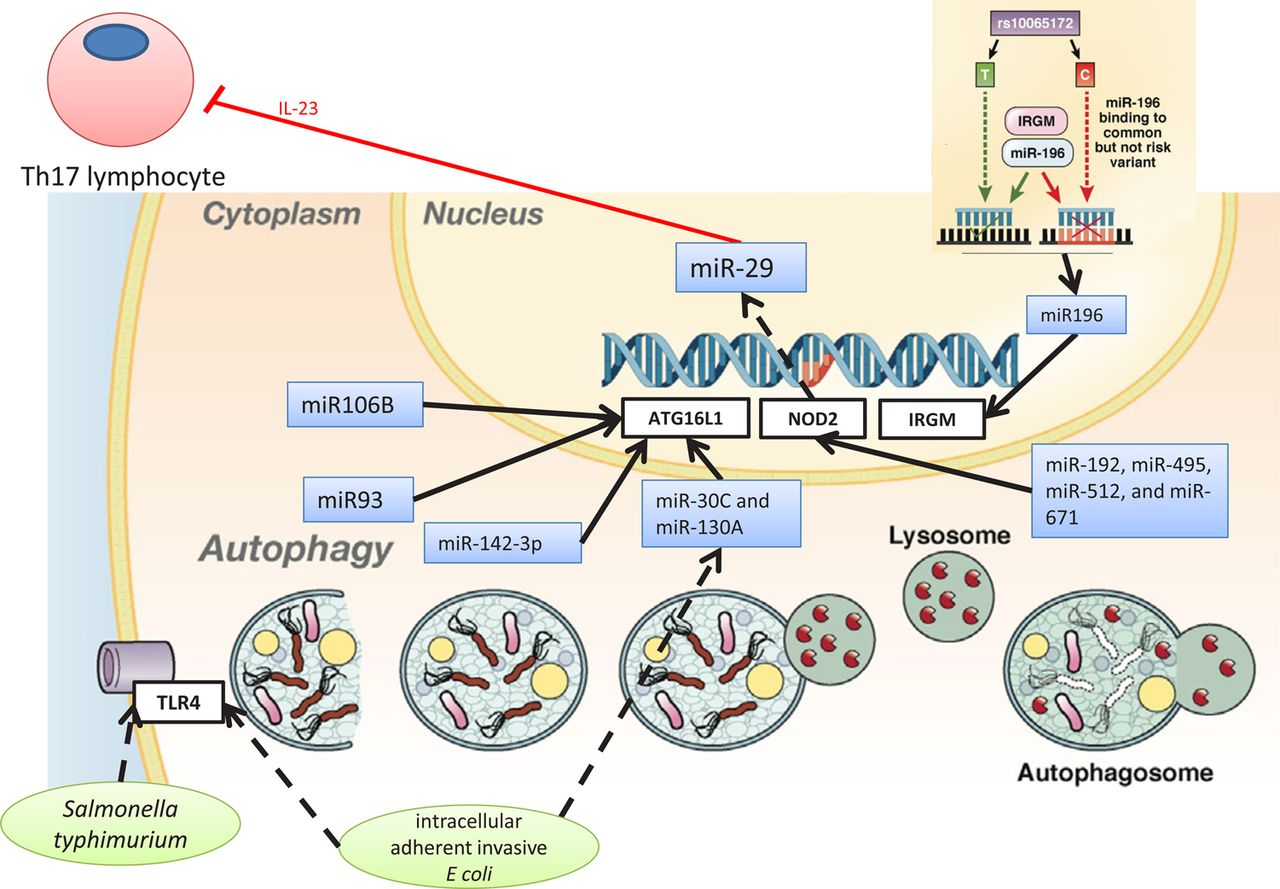 Diagram Of Crohn Disease Micrornas New Players In Ibd Gut
