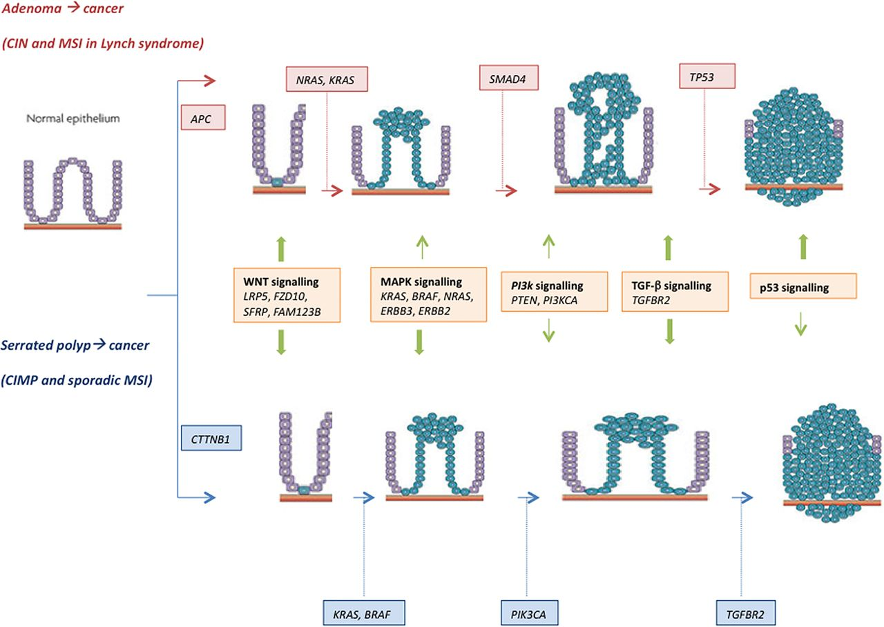 pathophysiology of colon cancer diagram les paul vintage wiring molecular markers for colorectal screening gut