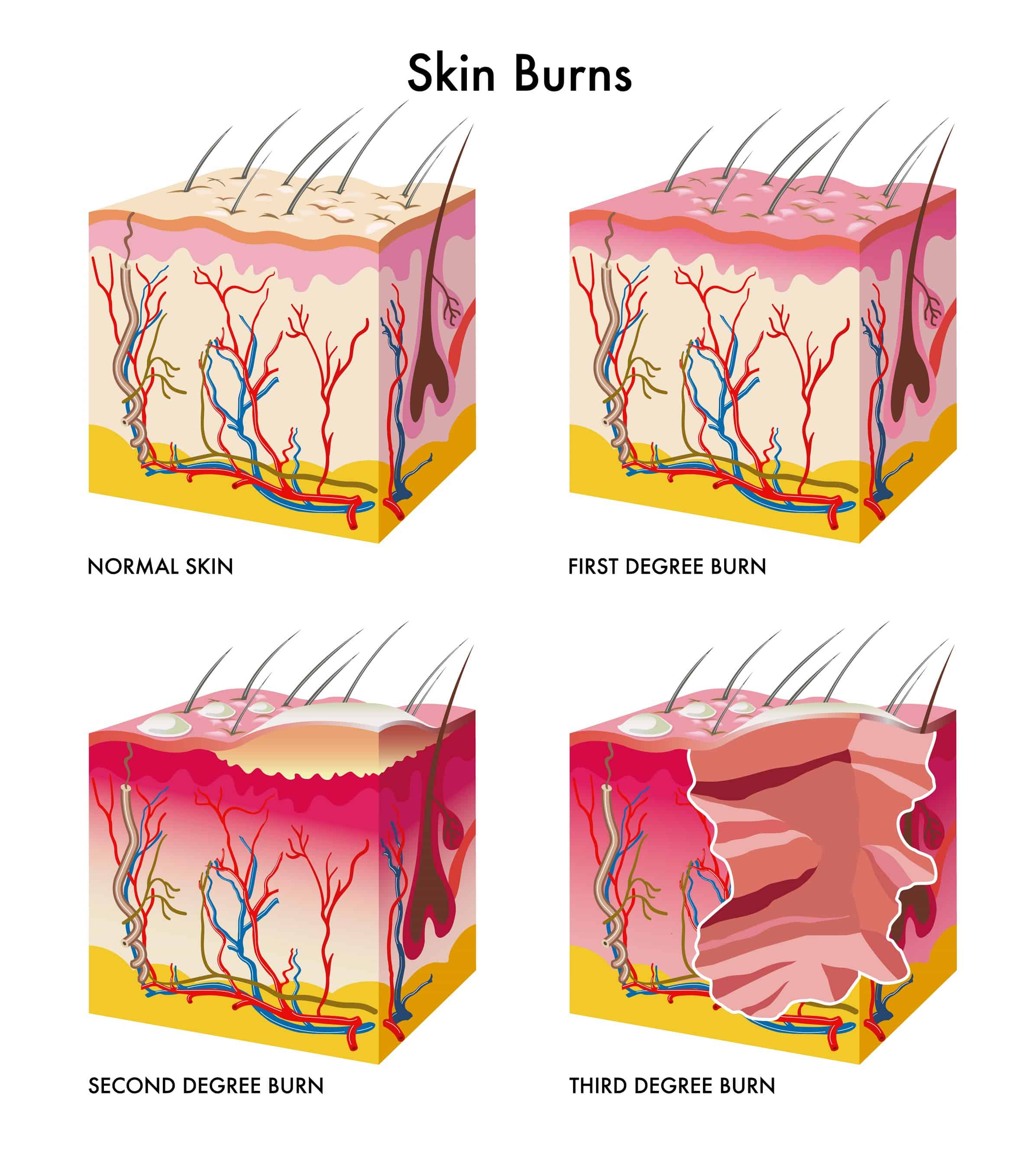 How Are Burn Injuries Evaluated