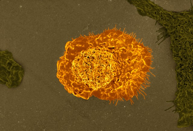 Immune cells (macrophage)