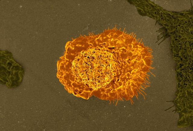 Immune cells (macrophage)