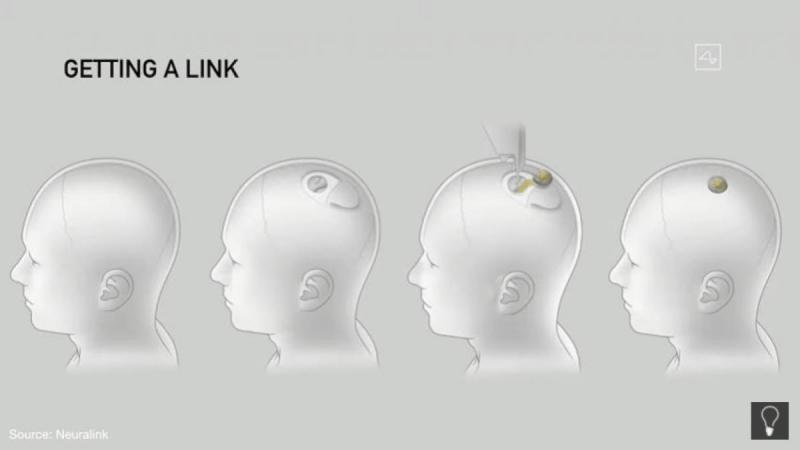 Neurolink, Elon Musk, Wikipedia,