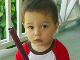 """19-month-old Bounkham """"Bou Bou"""" Phonesavanh. Hospitalized for a month after a flashbang grenade exploded in his crib"""