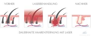 dauerhafte haarentfernunglaser berlin gynpraxis mitte
