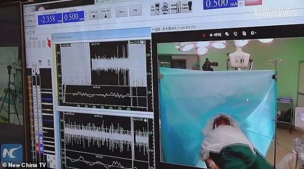 Meet Chinese Doctor Who Performs Remote Brain Surgery on Patient 3000km Away