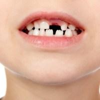 子供の歯並び