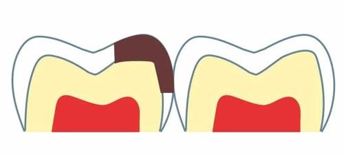 隣の歯との間にできた虫歯