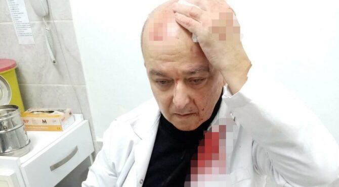 Maske uyarısı yapan doktorun kafasını yardı