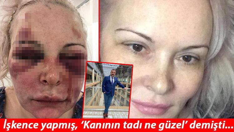 Otel odasında Rus turiste dehşeti yaşatmıştı! Otteva Elvira korku dolu anları anlattı