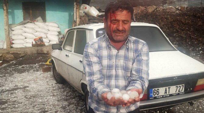 Yumurta büyüklüğündeki dolu hastanelik etti