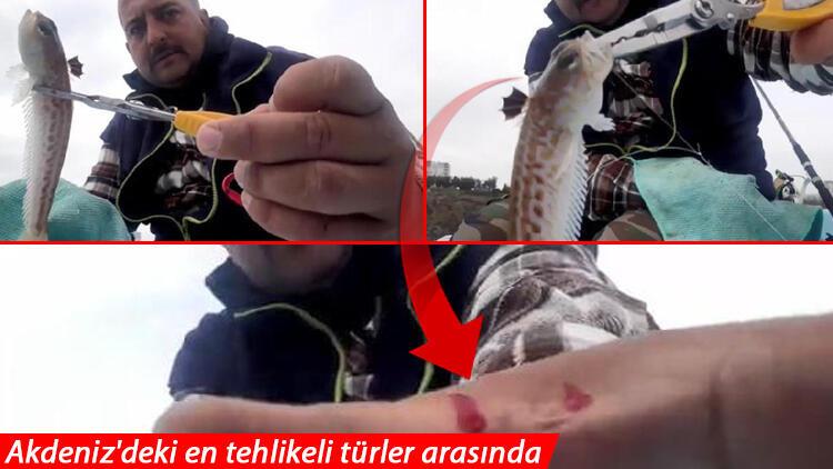Antalya'da zehirli trakonya balığı paniği! Anlık teması hastanelik etti