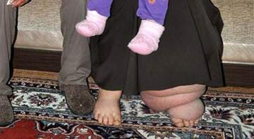 Fil hastası kadının tek özlemi ayakkabı giyebilmek