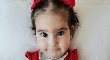 SMAlı Elif bebek hayatını kaybetti, toplanan 2,4 milyon lira diğer hastalara dağıtılacak