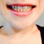 八王子の透明矯正歯科なら京王八王子駅前歯科へ