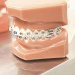 八王子で大人の矯正歯科