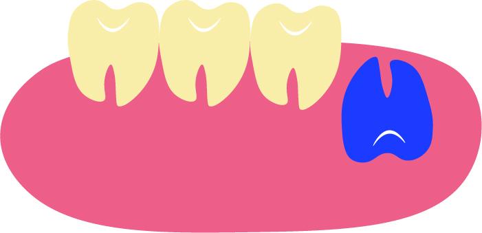 逆性埋伏智歯