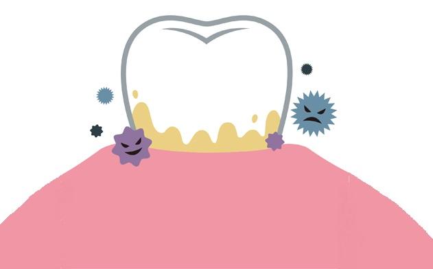 歯石のイメージ図