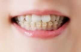 八王子の矯正歯科