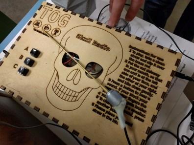 Bone-conducting radio