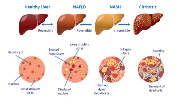 Diets for fatty liver progression