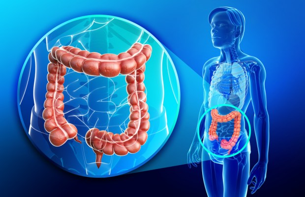 Impaired colonic motility makes you constipated